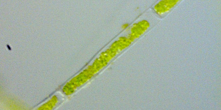 Cladophora Alge unter dem Mikroskop